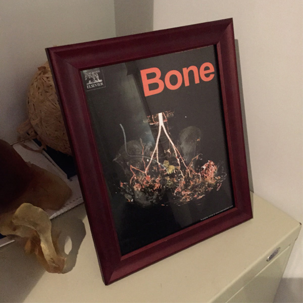 a framed issue of bone journal featuring a pelvis with heterotopic ossification