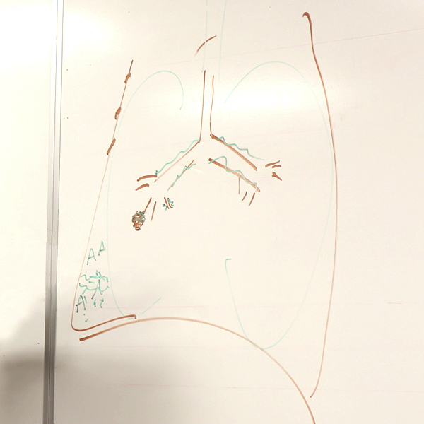 Drawing on whiteboard of a respiratory system