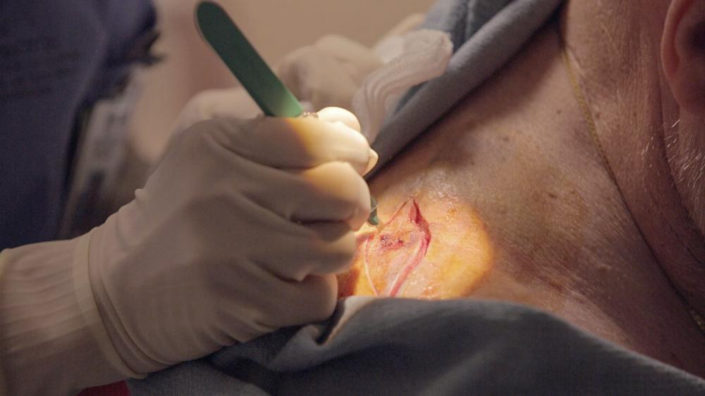 Close up of Josephine drawing an outline around the melanoma on patient's shoulder